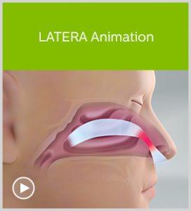 LATERA Animation